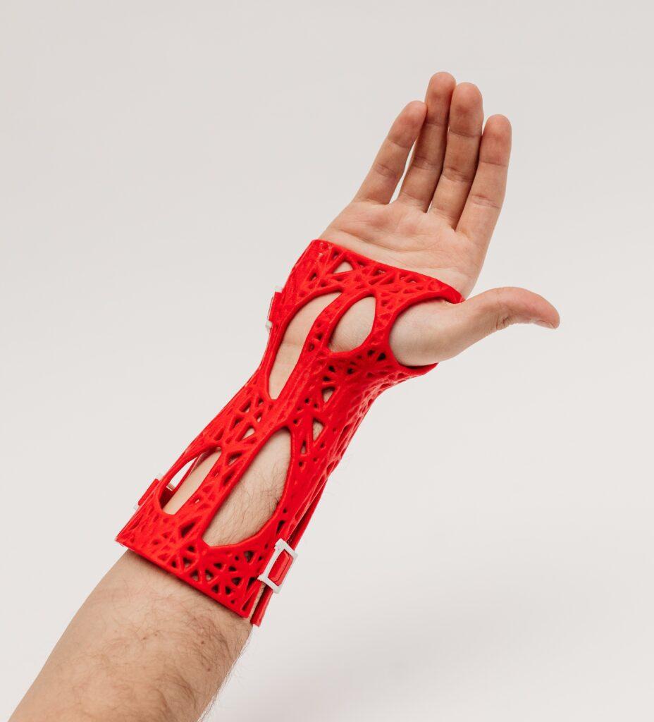 Pirmais 3D ģipsis Vidzemes slimnīcas pacientei