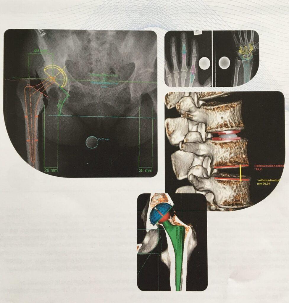 Jauna programmatūra endoprotezēšanas operācijām